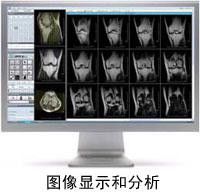 knee-scan-2.jpg