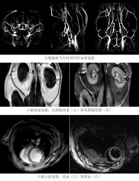 血管及体部图像