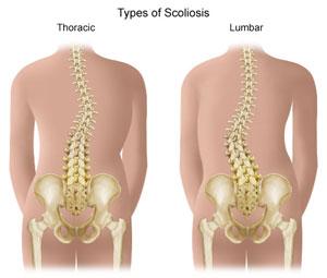 scoliosis.jpg