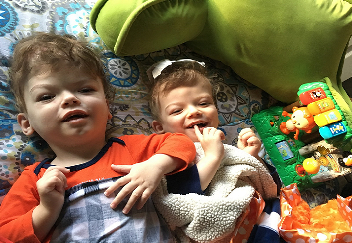 The smiling and separated boys post-surgery (   Source   ).