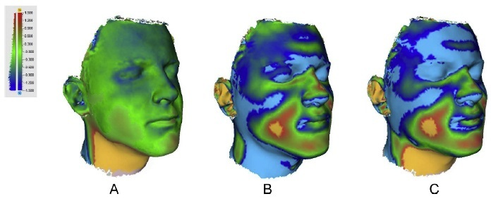 Topographical results from a 3D facial scan. (   Source   )