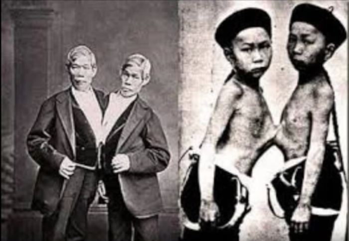 Chang and Eng, two of the most famous conjoined twins, were the namesake of the term Siamese twins. They were lucky enough to survive into adulthood (   Source   ).
