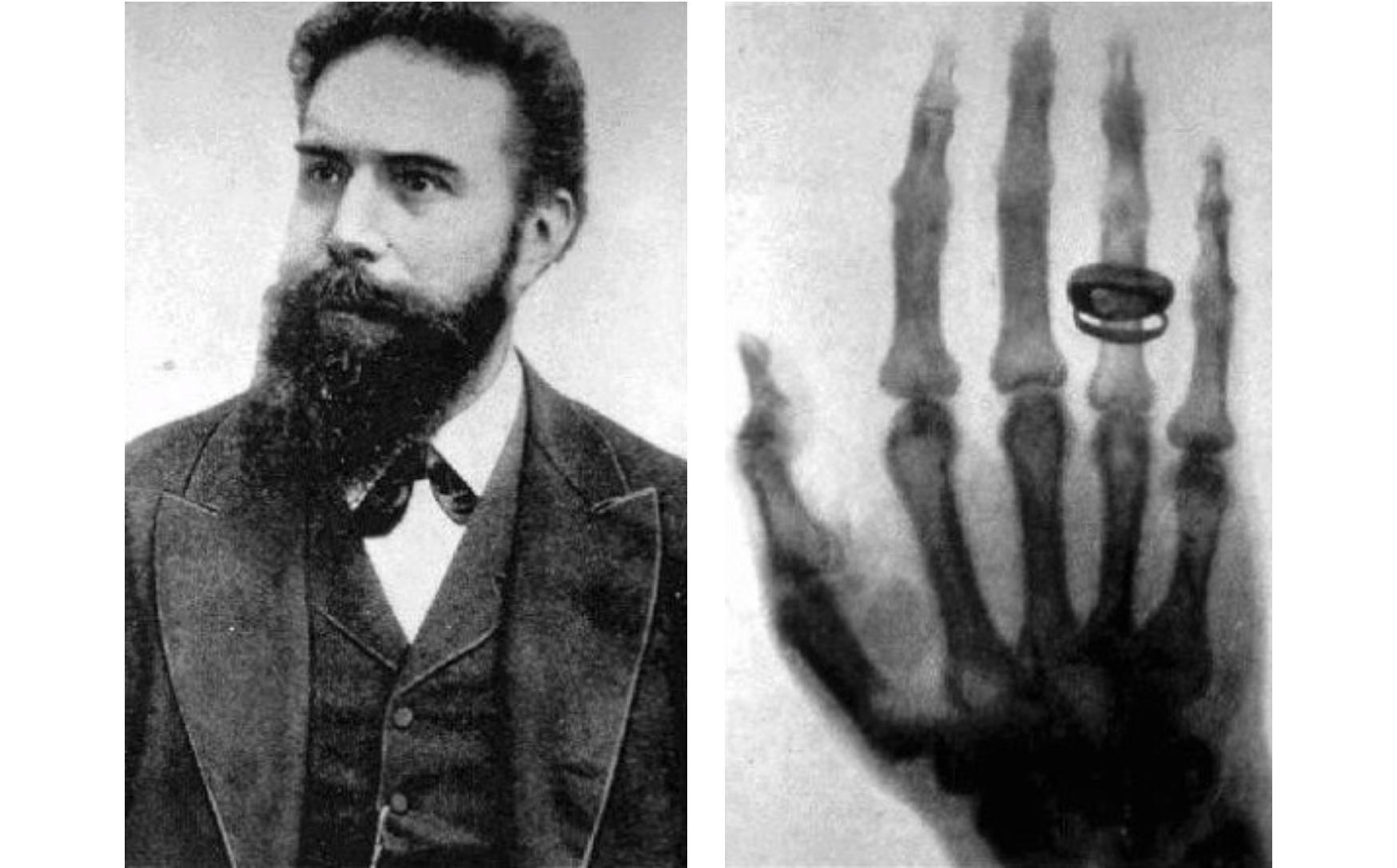 Wilhelm Conrad Röntgen (L) and the first X-ray ever taken, showing Röntgen's wife's hand and her wedding ring (R) . ( Source )