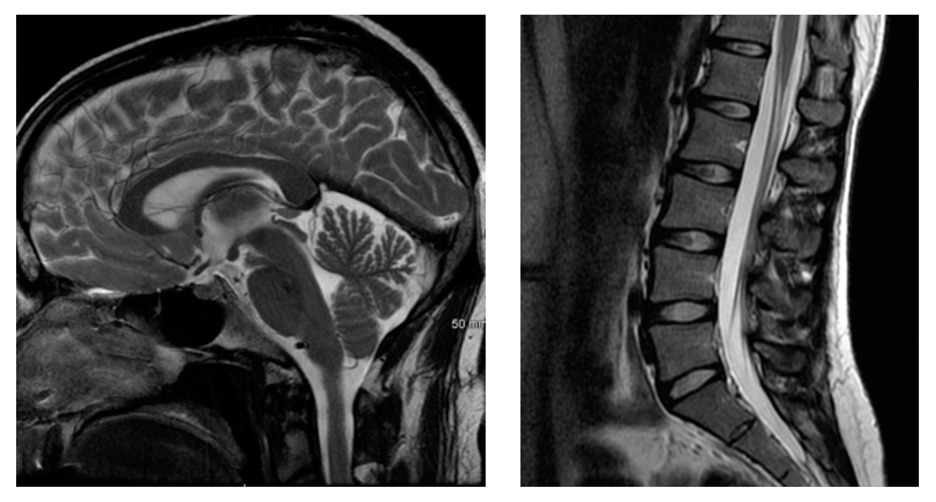MRI of the brain (L) and of the lumbar spine (R).  ( Source )