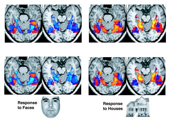 Result of an fMRI from a study showing the different parts of the brain lighting up after seeing a face or seeing a house . ( Source )
