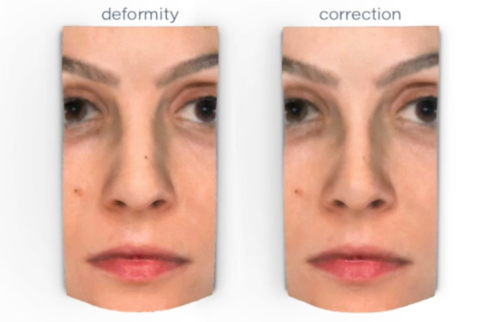 The Most Common Nasal Deformities Corrected During Cosmetic