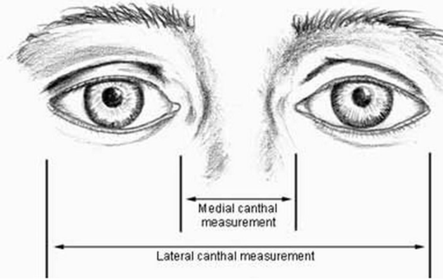 Drawing showing the how the medial canthal distance is measured. ( Source )