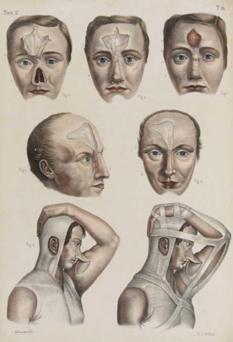 Traditional (and often gruesome) techniques used to conceal syphilis symptoms. (   Source   )