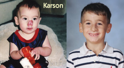 Karson before and after his reconstructive surgery for congenital hemangioma. (   Source   )