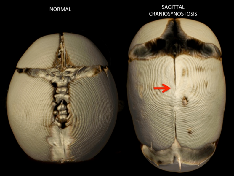 Sagittal synostosis prevents normal brain development by narrowing its placement in the skull. (   Source   )