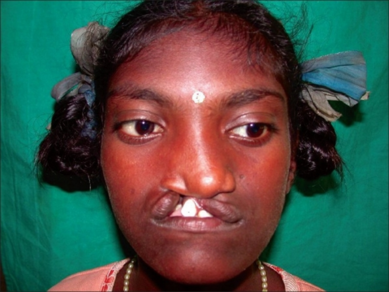 A patient with median facial dysplasia . ( Source )