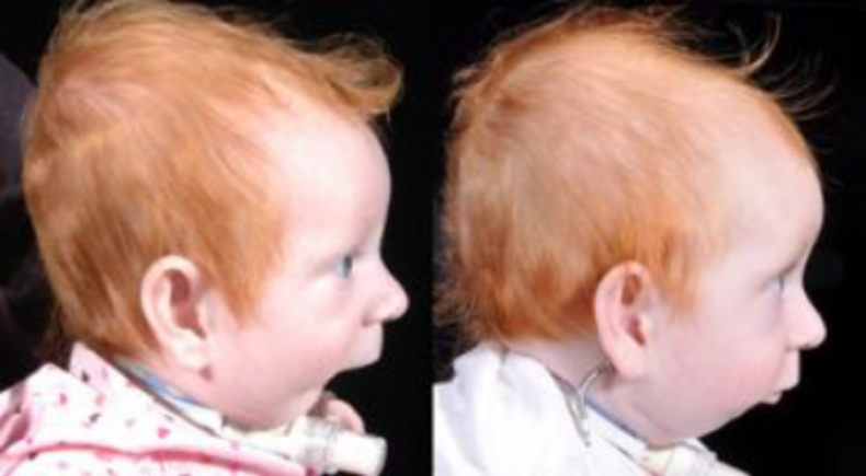 A patient with Pierre Robin Sequence exhibits an underdeveloped chin . ( Source )