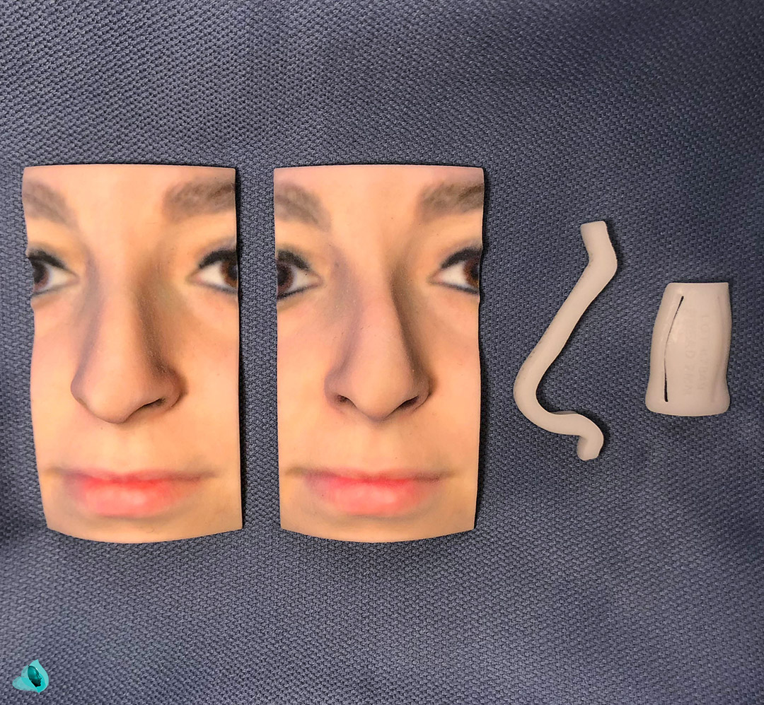 MirrorMe Rhinoplasty Kit