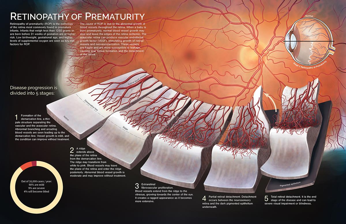 Retinopathy of Prematurity by Wendy (1T6) Gu