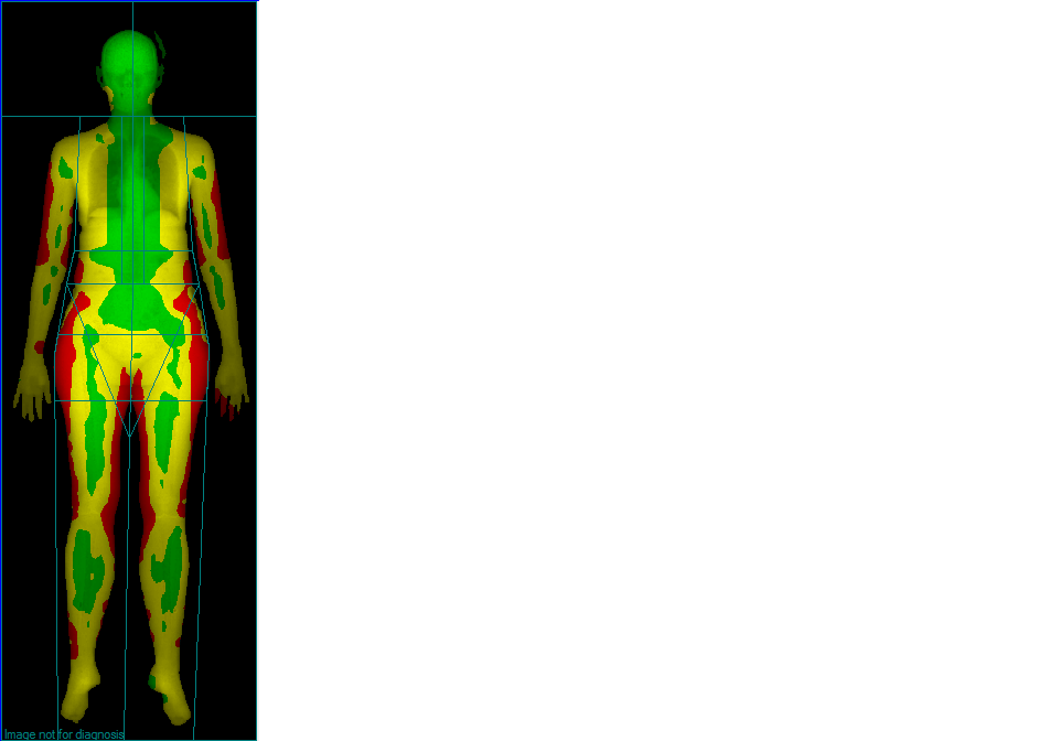 BodyCompW1.png
