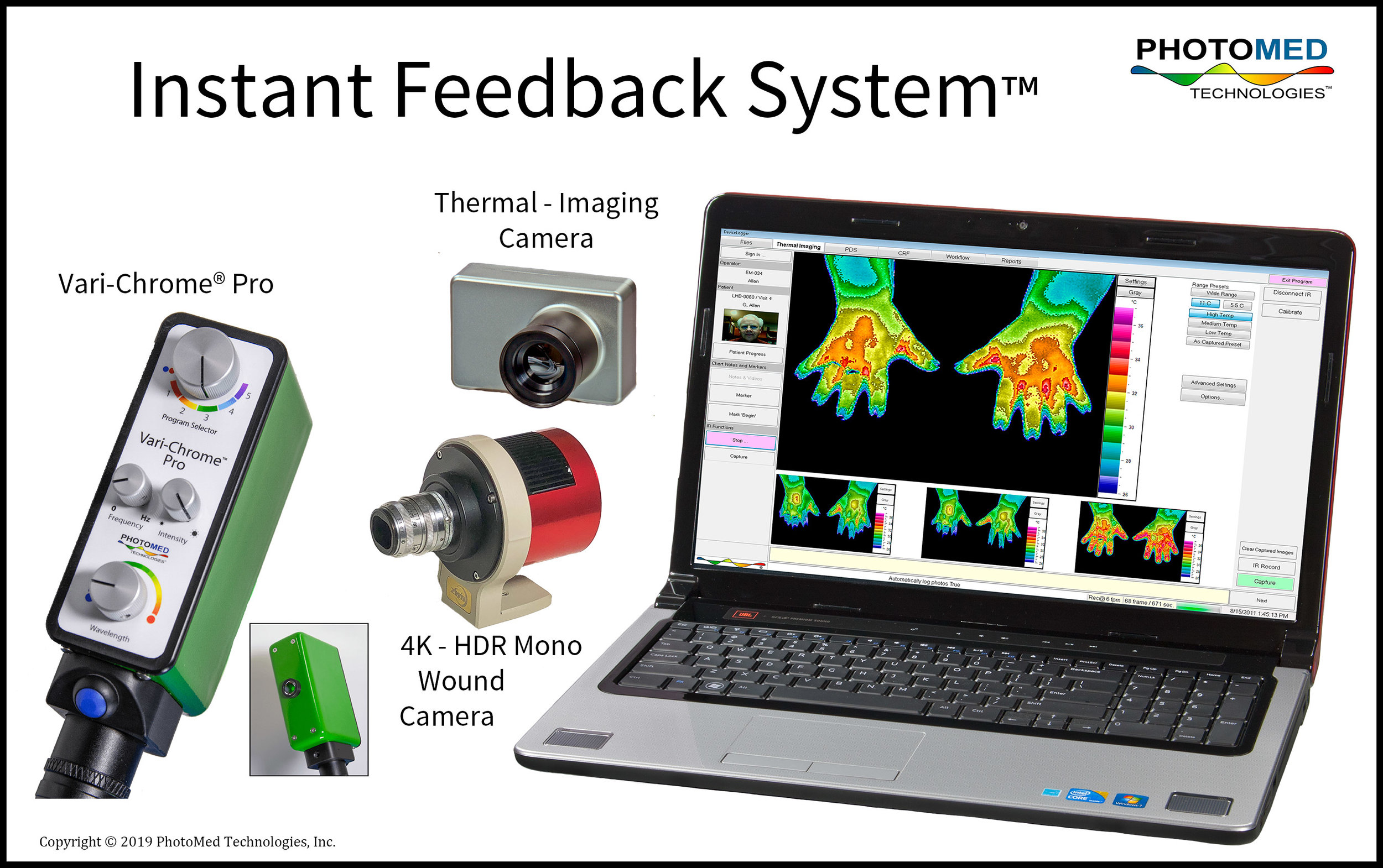 Figure 1  - The  Instant Feedback System ™ enables a solo practitioner to manage visits which include real-time recording of treatment parameters, physiological responses, and outcomes. The modular System is designed to manage studies in small clinics or in the field. Thermal imaging provides feedback from disorders that include signs of abnormal thermoregulation. The 4k - HDR mono camera records the entrance of fresh materials entering non-healing wounds. Use a USB camera (not shown) for capturing discoveries and for documenting sensory or motor testing.