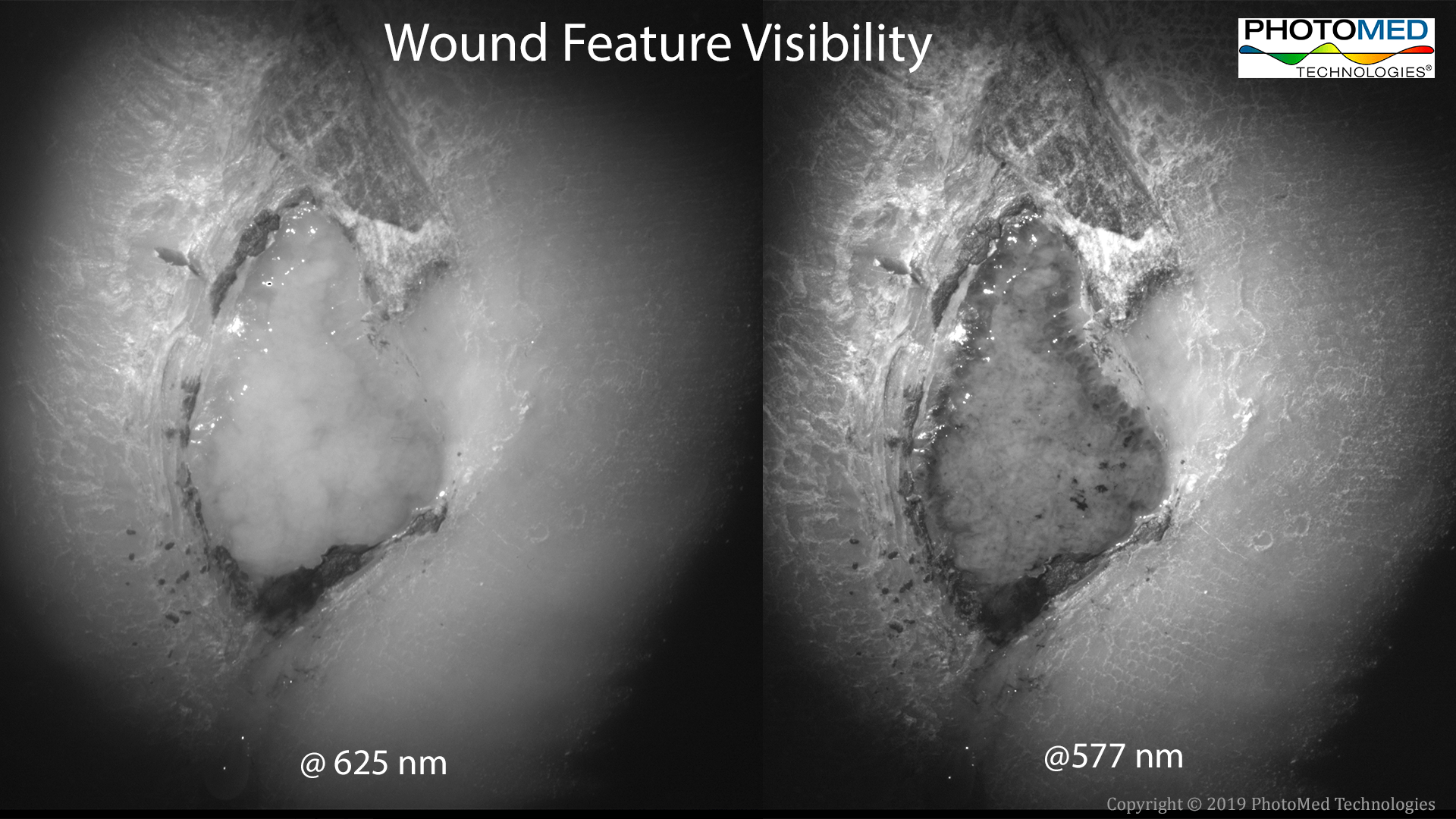 Wound Feature Visibility 2019-05-10.png