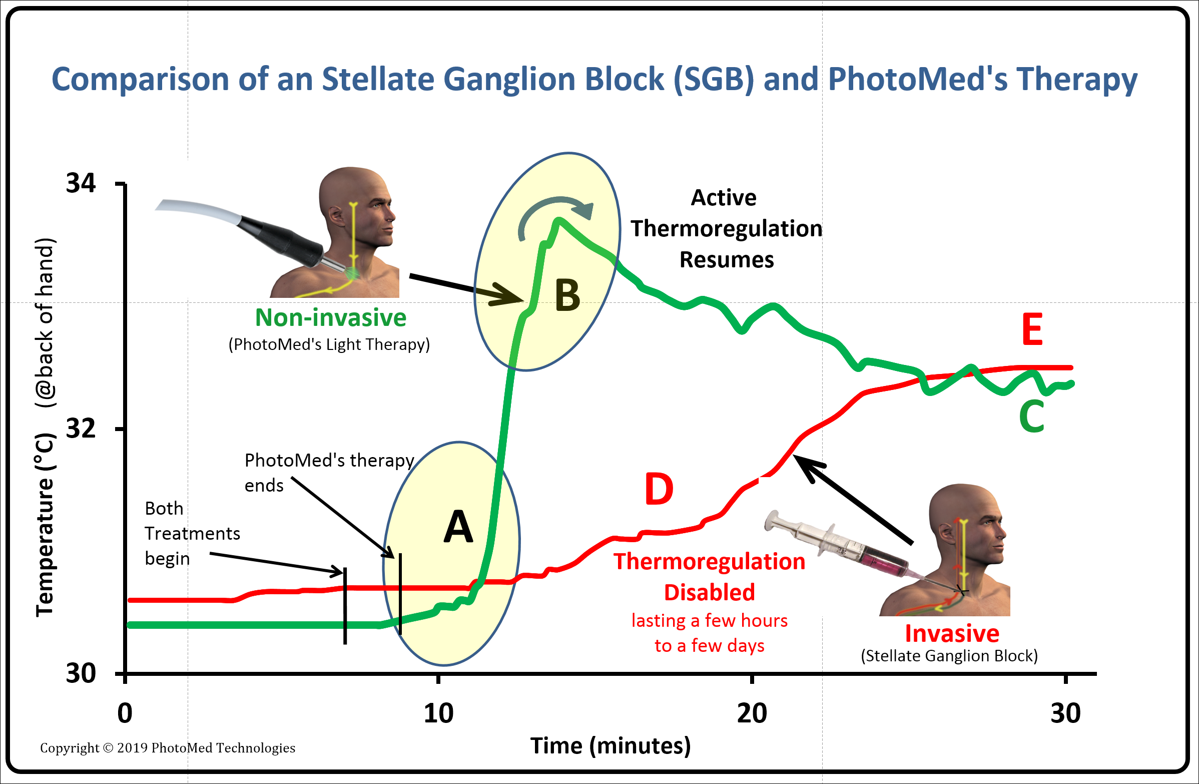 Figure 5  - Comparison of the thermal effects of a stellate ganglion block (SGB) vs. PhotoMed's therapy. For illustration purposes, the starting times and temperatures are aligned. The key observation is that the SGB forces warming by stopping thermoregulation whereas PhotoMed's no-invasive therapy prompts thermoregulation to shift to a comfortable temperature.