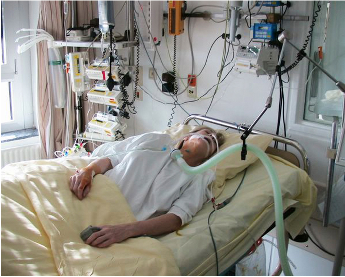 """""""Katherine"""" in an experimentally induced coma aimed to """"reset"""" her nervous system to relieve her CRPS. Photo by Permission"""
