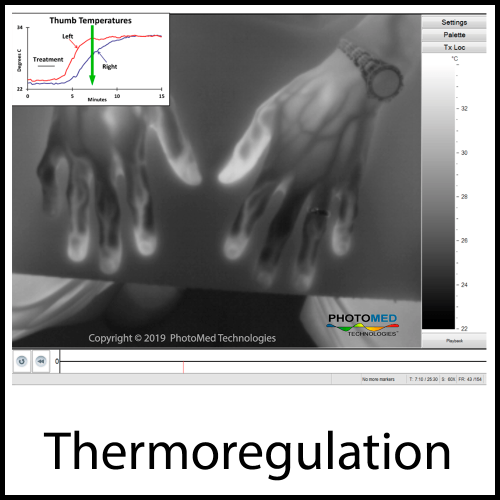 Thermoregulation1x1.png