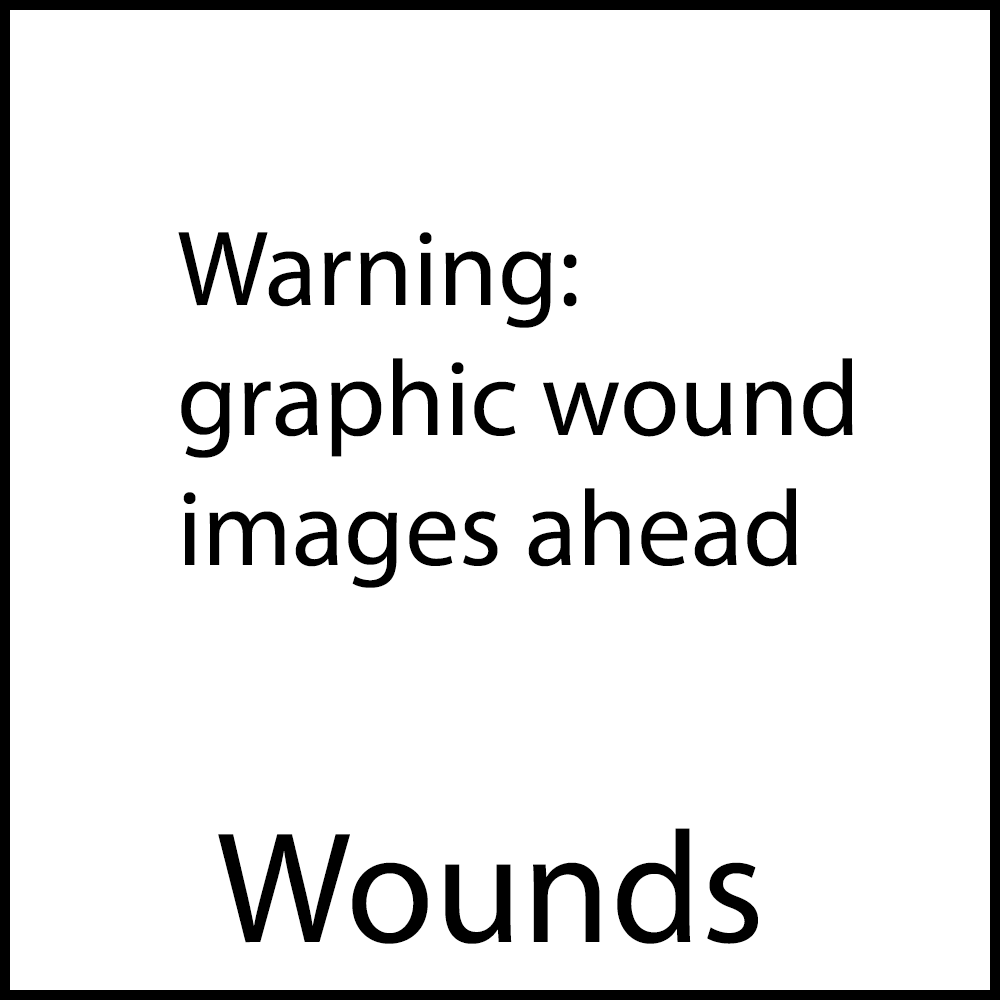 Wounds1x1.png