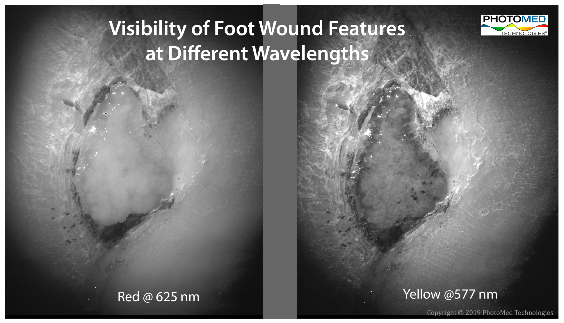 Wound Feature Visibility 2019-05-28.png