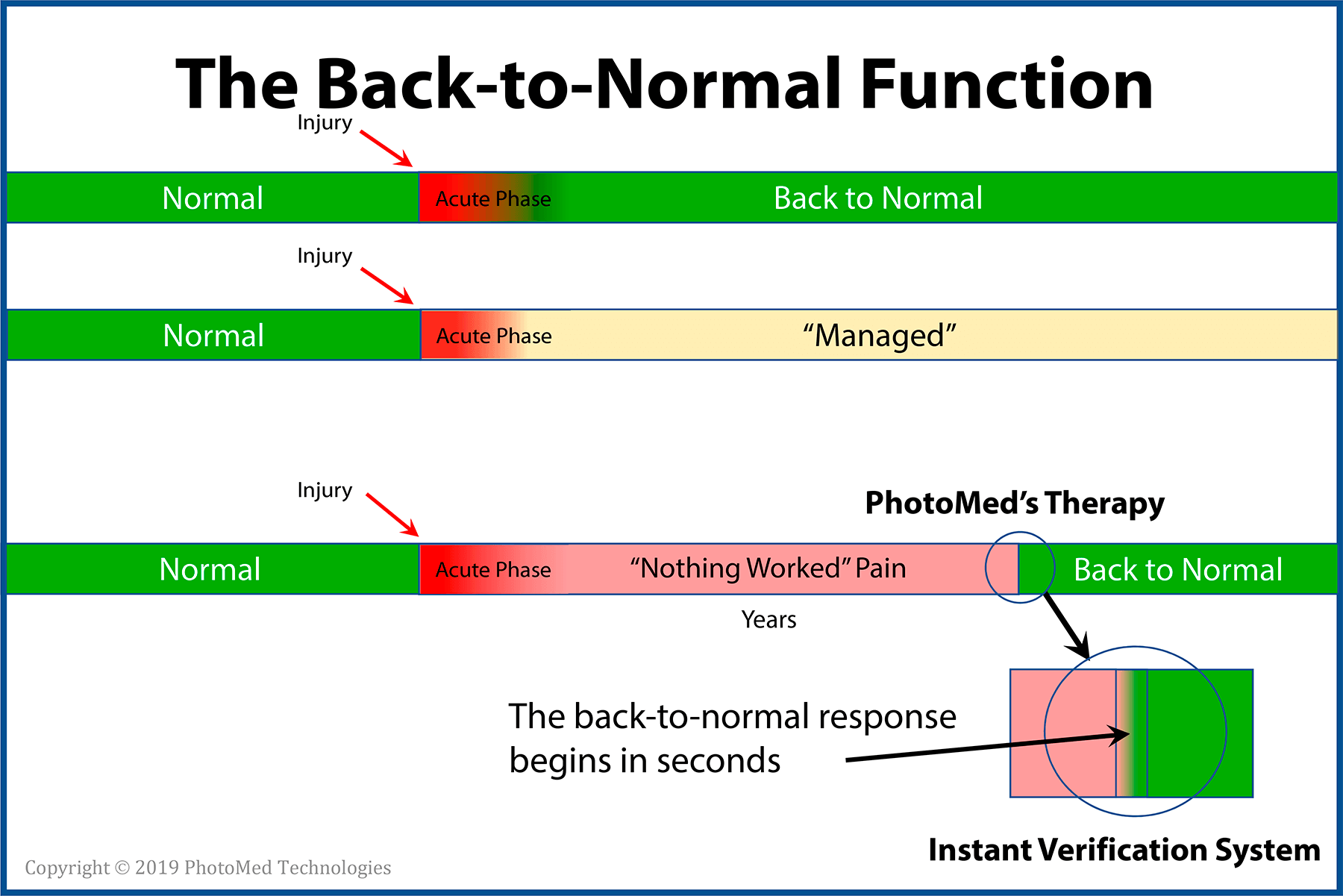 Figure 1  - Depiction of the back-to-normal response after an injury. For people without chronic pain, the return typically occurs as part of the conclusion of the acute phase. For modeling purposes, the treatment-resistant pain experience (with no known cause for its presence) appears to be waiting for a signal to conclude. Real-time data and recording may help answer new questions.