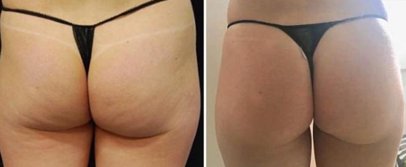 Wygląd przed i po zabiegu