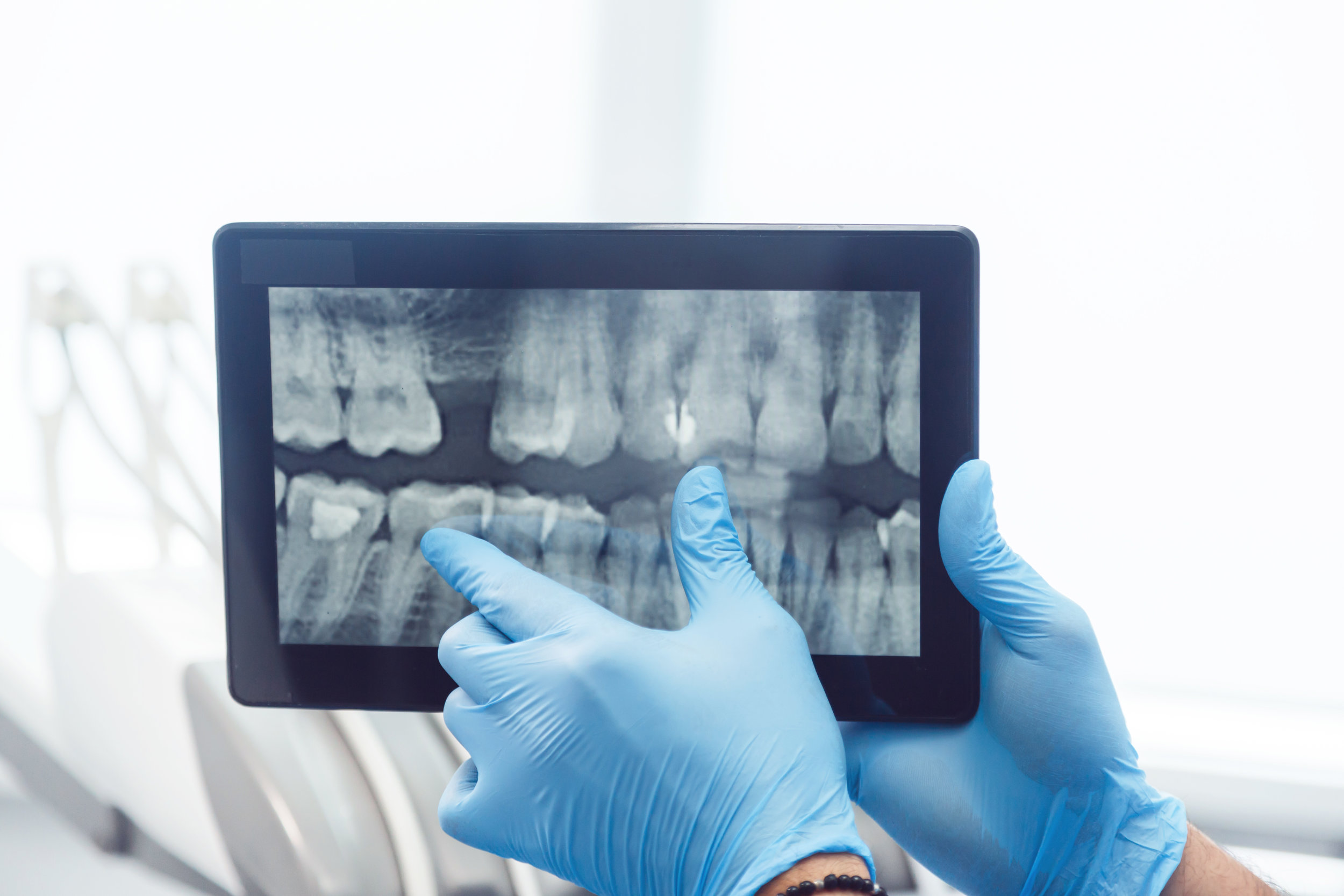 monroe-dentist-restore.jpeg