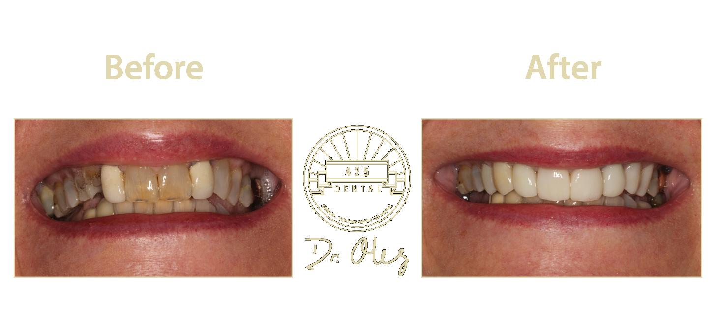 Teeth53.png