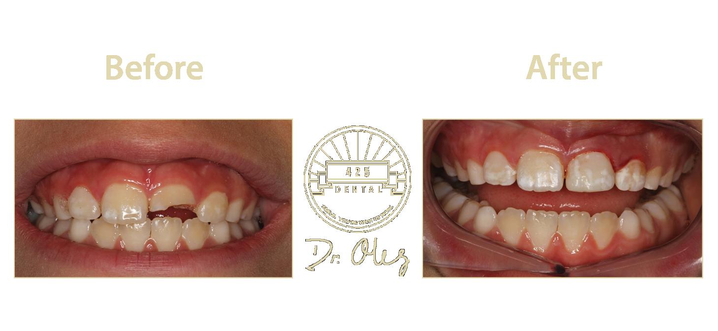 Teeth5.png