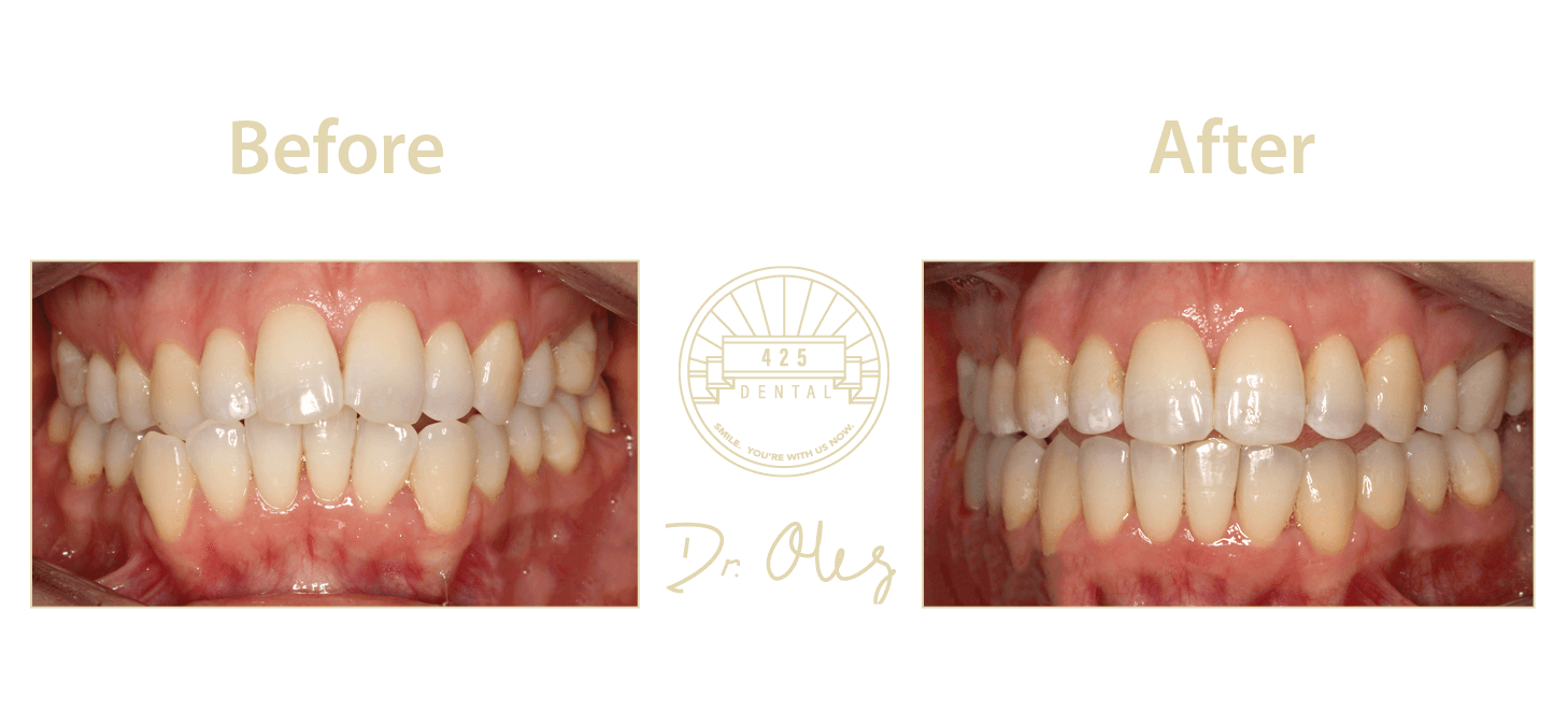 Invisalign Before After 19 -1