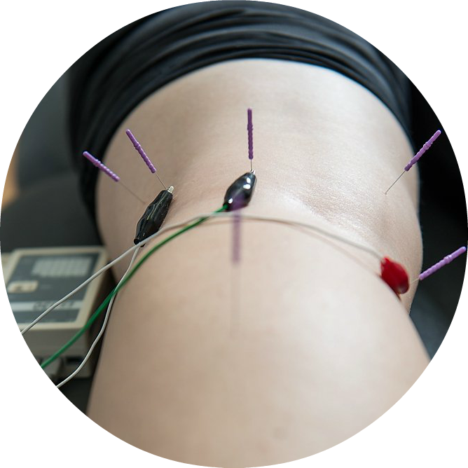 Acupuncture | Dry Needling