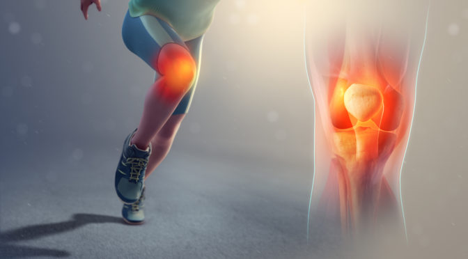 Patella Femoral Pain Syndrome1.jpg