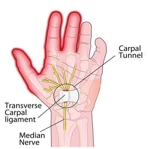 Carpal-Tunnel-Syndrome3.jpg