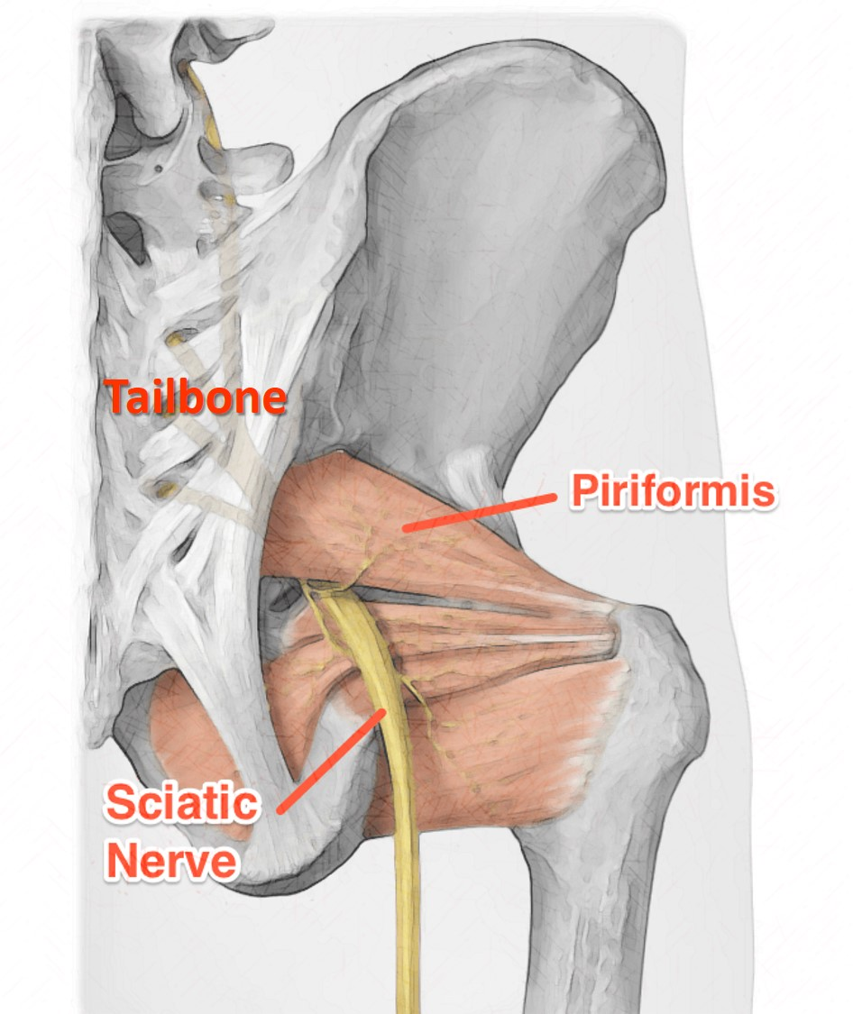 Piriformis Syndrome2.jpg