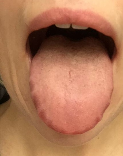 Op deze tong zijn de inkepingen van de tanden zichtbaar aan de randen van de tong.