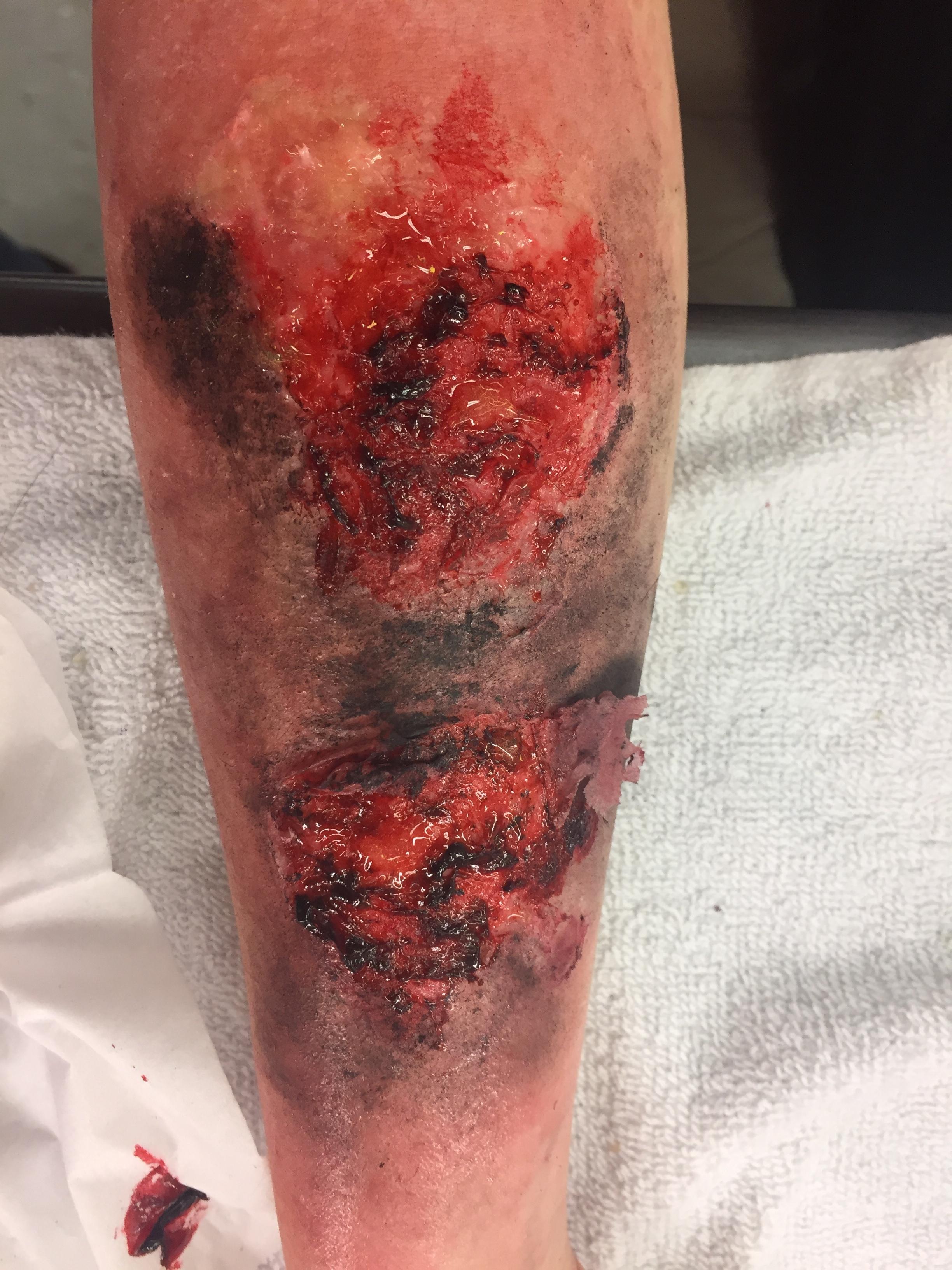 3rd degree burn arm.JPG