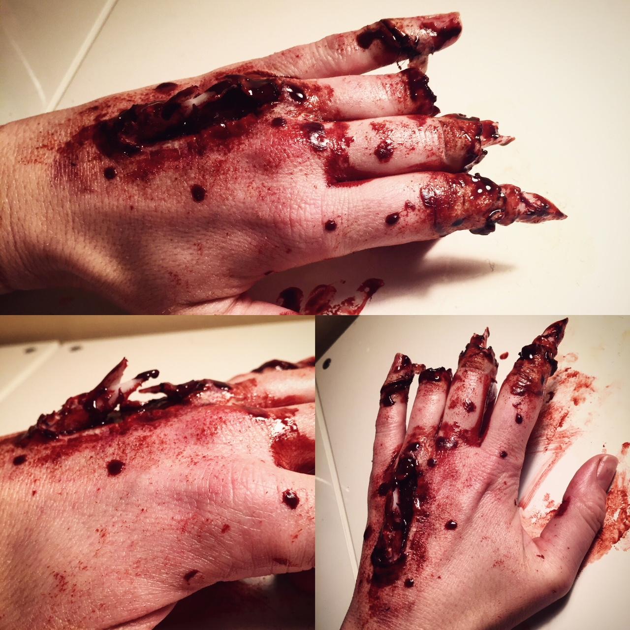 mangled hand.jpg