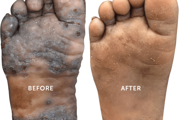 beforeafter_feet2x.png