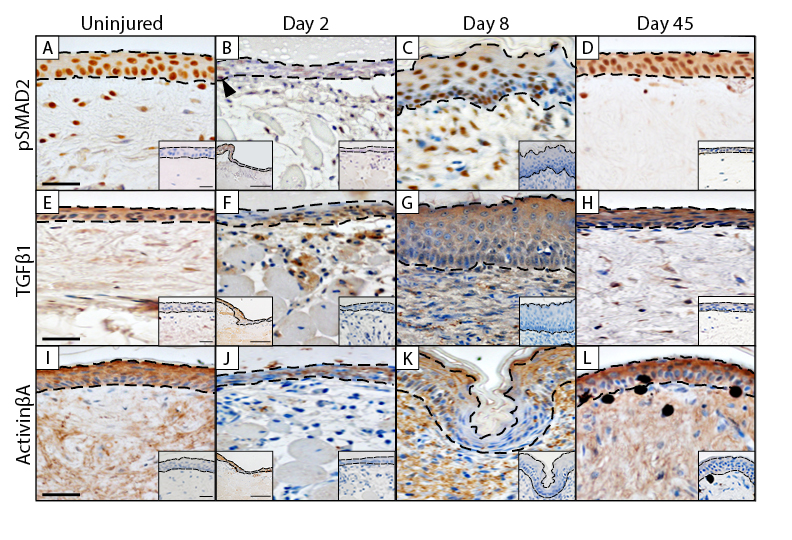 VEGF, FGF and TGFβ expression in the normal and regenerating epidermis of geckos: implications for epidermal homeostasis and wound healing in reptiles - Published in the Journal of Anatomy, this article is the culmination of my Master's work. This publication looks at major factors in the skin and investigates how their expression changes prior to, during and following skin regeneration.
