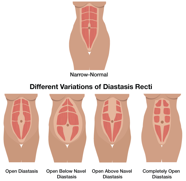 Diastasis Recti and Postnatal exercise