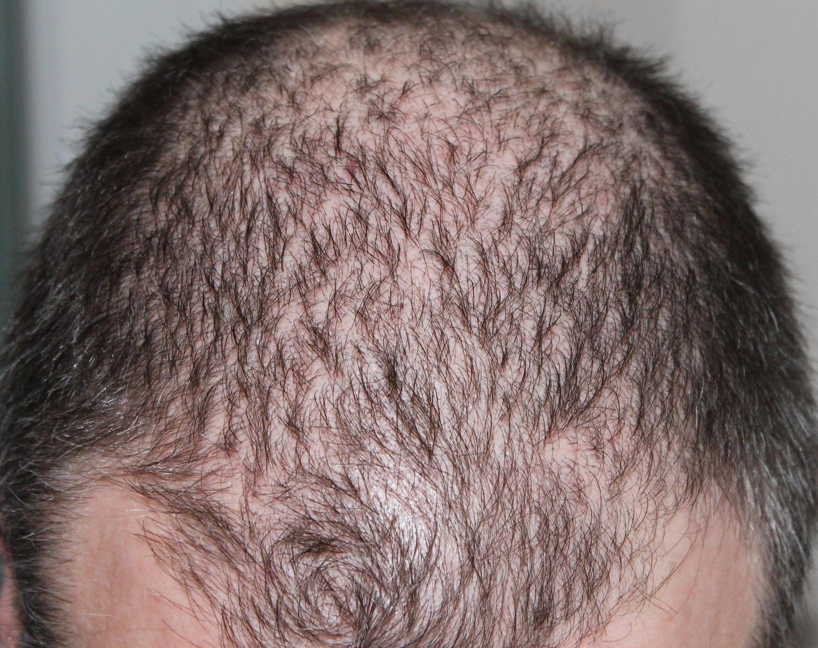 Hair Regrowth -