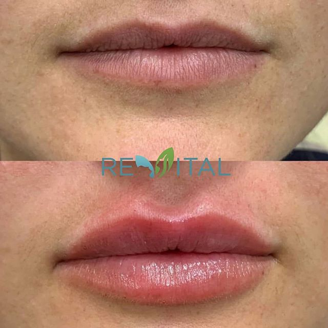 #TransformationTuesday! 😍💋 . This beauty received plumper, fuller lips to achieve this stunning, yet natural, transformation! 💉 . Dr. L is a perfectionist when it comes to lip filler, and she'll take good care of you! 🙌