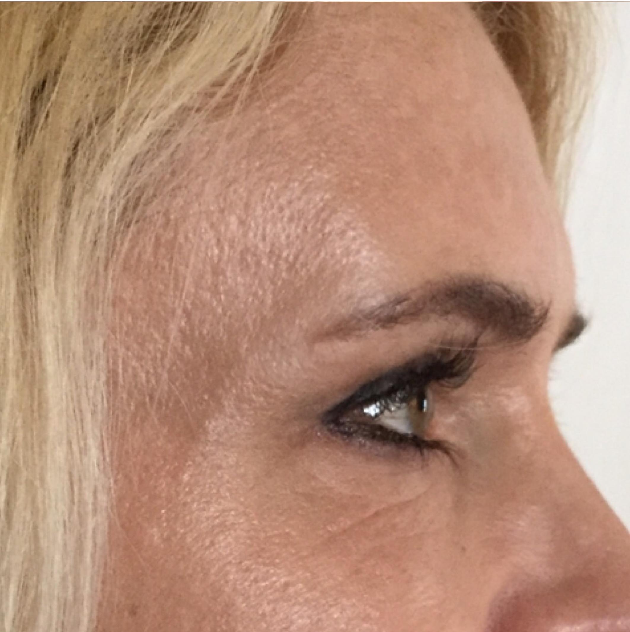 Wrinkles-02.jpg