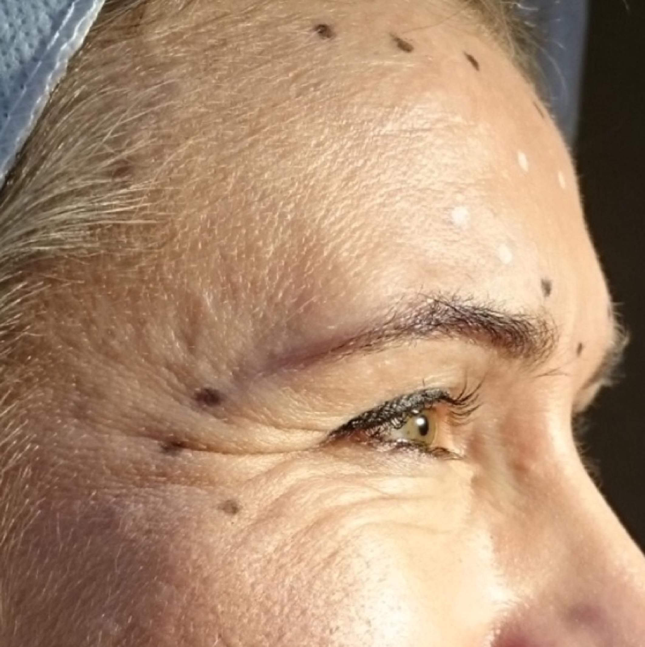 Wrinkles-03.jpg