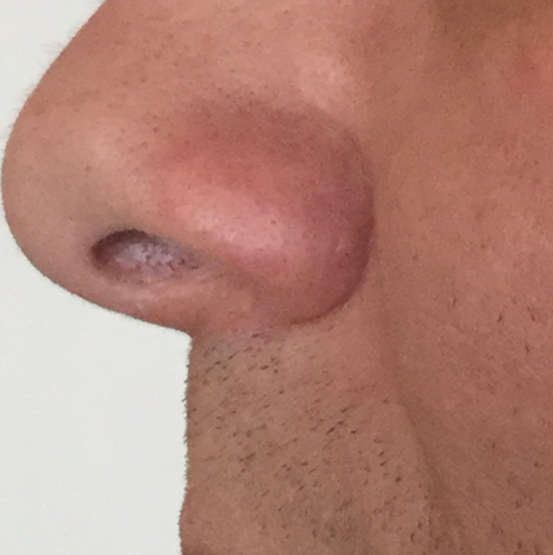 nose-02.jpg