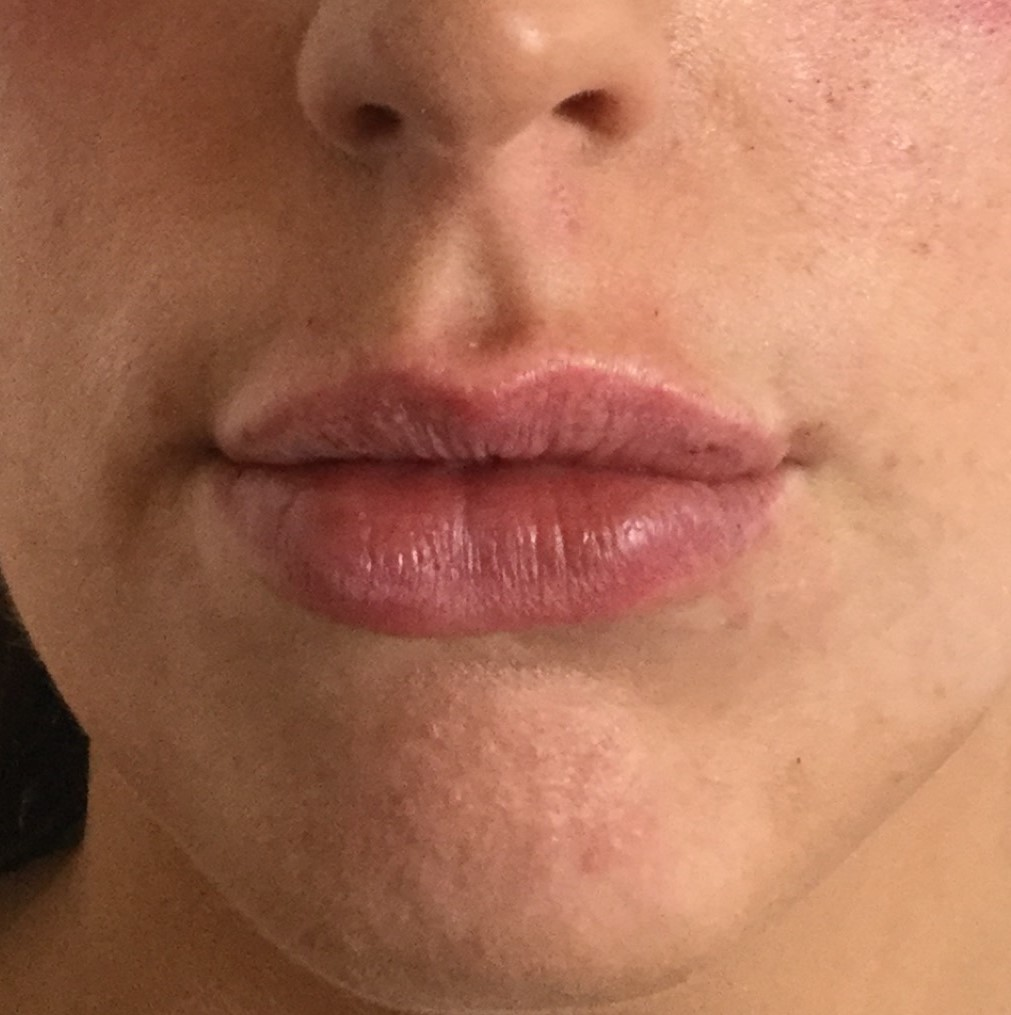 Lip_fillers2.jpeg