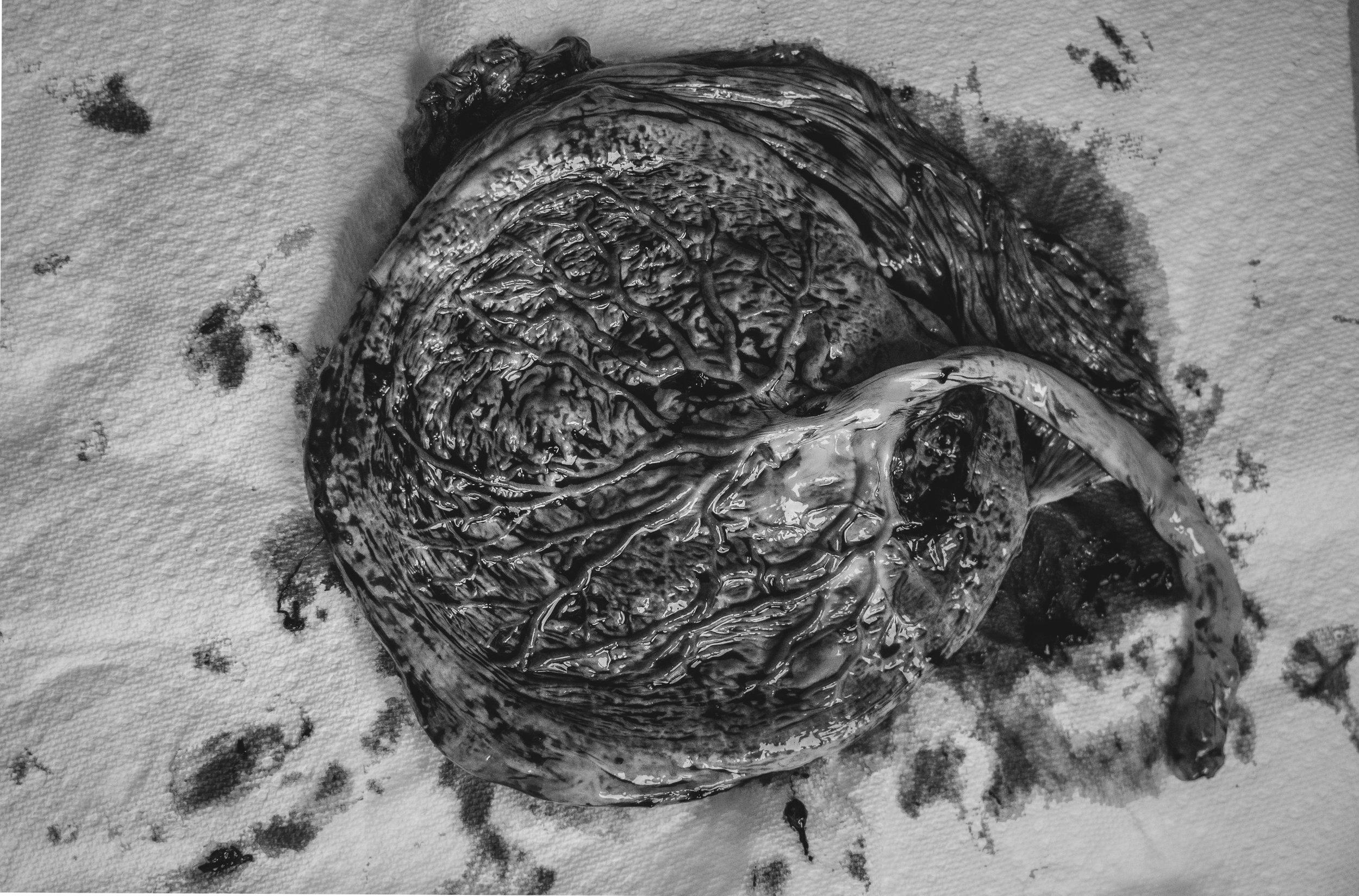 placentablackandwhite.jpg