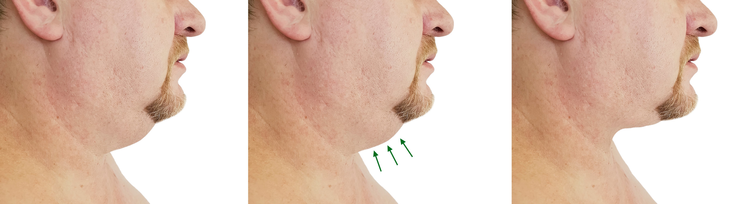 RF Neck Results (Male)